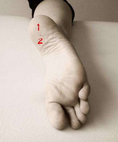 fascitis dolor planta pie osteon